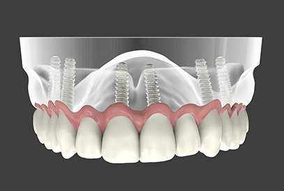 Implant supported dentures computer rendered photo