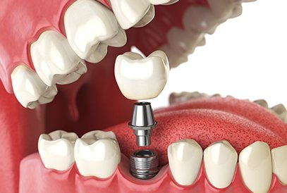 Dental restorations implant open mouth view